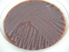 Chocolate agar